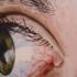 4x6_inch_eye4_copy