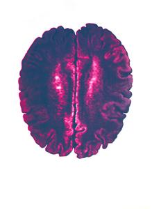 21_new_brain