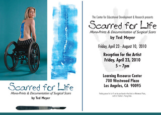 Scarred for Life,Ted Meyer