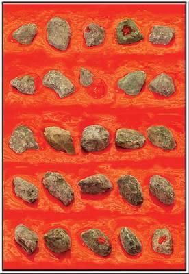 20101229035528-stones100001web