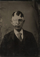 Unidentified Young Man with Bandaged Head,
