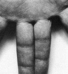 Hand, Spread Fingers, John Caplans