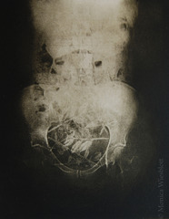 The Seeds Were Sown, series: BARREN:life on infertile soil, Monica Wiesblott
