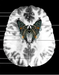 MRI Butterfly, Suzanne Anker