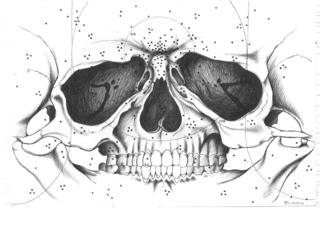 Skull, Alex Binnie