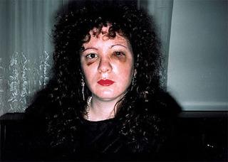 Nan after being battered, Nan Goldin