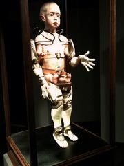 Phocomelic Child With Prosthetic Limb Apparatus, Jesse Berlin